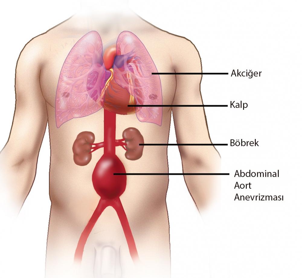 Hipoglisemi NedirBelirtileri Nedenleri Ne İyi Gelir Tedavi Yöntemleri